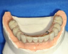 Procera Implant Bridge